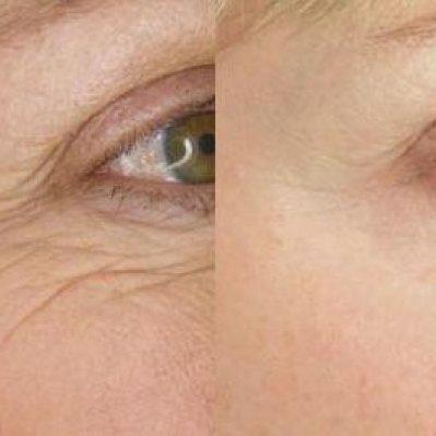 trattamenti viso_antimacchia